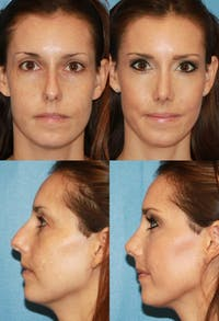 Rhinoplasty Gallery - Patient 2388190 - Image 1