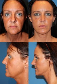 Rhinoplasty Gallery - Patient 2158410 - Image 1