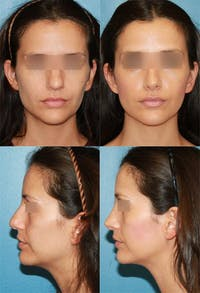 Rhinoplasty Gallery - Patient 2158416 - Image 1