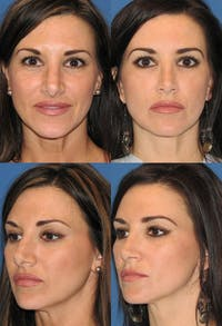 Rhinoplasty Gallery - Patient 2158418 - Image 1
