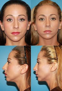 Rhinoplasty Gallery - Patient 2388198 - Image 1