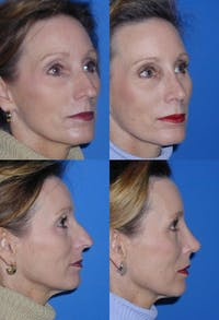 Rhinoplasty Gallery - Patient 2158426 - Image 1