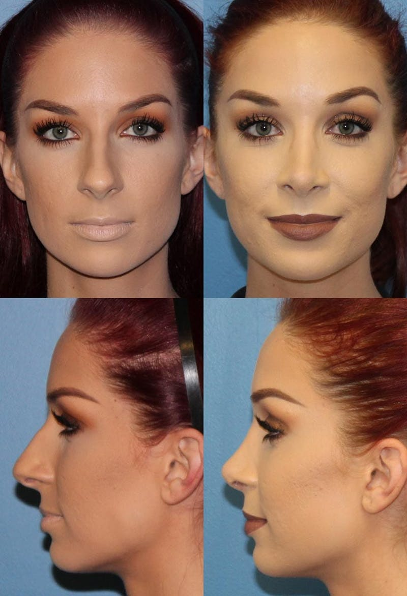 Rhinoplasty Gallery - Patient 2158432 - Image 1