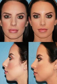 Rhinoplasty Gallery - Patient 2158436 - Image 1