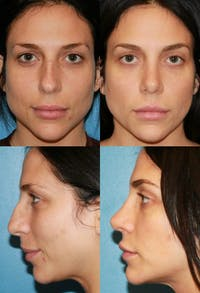 Rhinoplasty Gallery - Patient 2158439 - Image 1