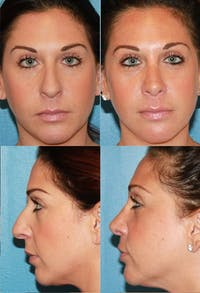 Rhinoplasty Gallery - Patient 2158443 - Image 1