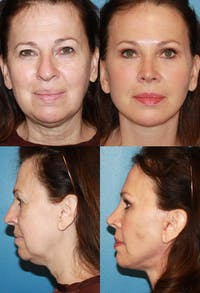 Rhinoplasty Gallery - Patient 2158447 - Image 1