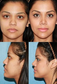 Rhinoplasty Gallery - Patient 2158450 - Image 1
