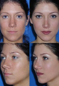 Rhinoplasty Gallery - Patient 2158451 - Image 1
