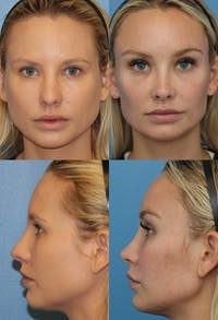 Rhinoplasty Gallery - Patient 2158453 - Image 1