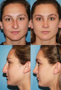 Rhinoplasty Gallery - Patient 2158454 - Image 1