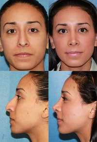 Rhinoplasty Gallery - Patient 2158455 - Image 1