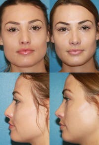 Rhinoplasty Gallery - Patient 2158457 - Image 1