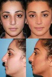Rhinoplasty Gallery - Patient 2158458 - Image 1