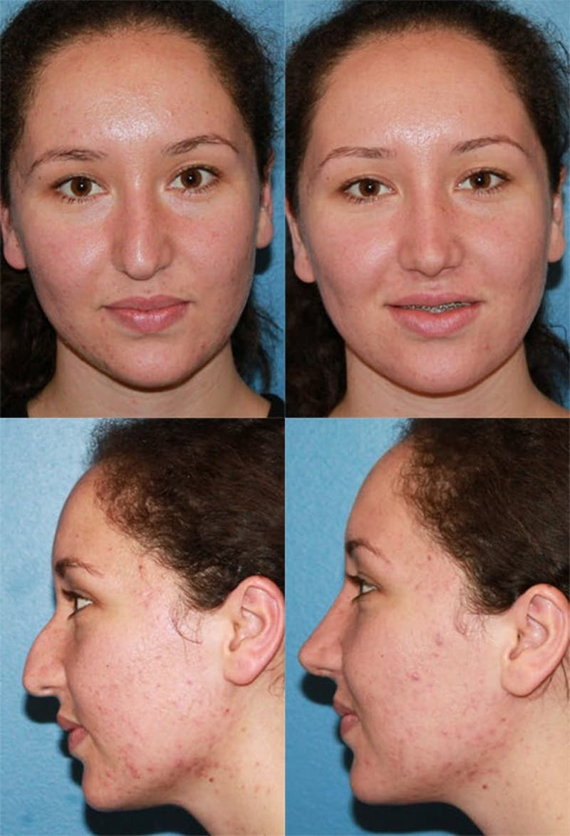 Rhinoplasty Gallery - Patient 2158459 - Image 1