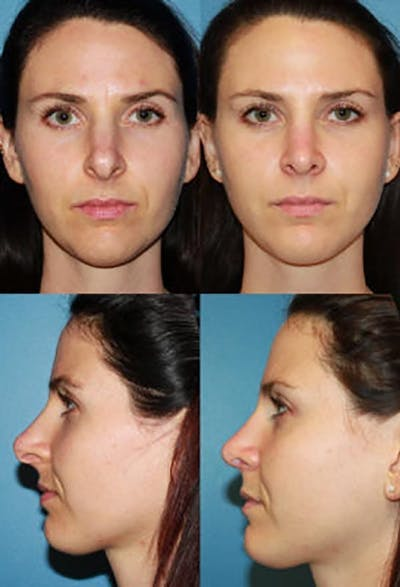 Prominent Nostril / Hanging Columella Gallery - Patient 2388267 - Image 1
