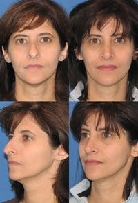 Rhinoplasty Gallery - Patient 2158463 - Image 1