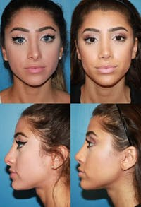 Rhinoplasty Gallery - Patient 2158465 - Image 1
