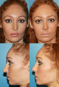 Rhinoplasty Gallery - Patient 2158468 - Image 1
