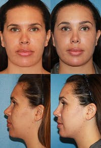Rhinoplasty Gallery - Patient 2158473 - Image 1
