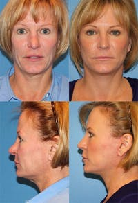 Rhinoplasty Gallery - Patient 2158478 - Image 1