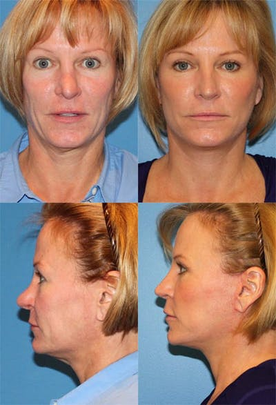 Revision Rhinoplasty Gallery - Patient 2388300 - Image 1