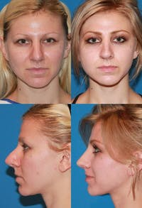 Rhinoplasty Gallery - Patient 2158479 - Image 1