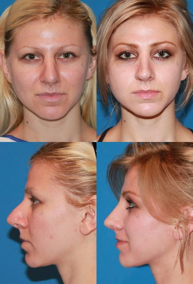 Revision Rhinoplasty Gallery - Patient 2388301 - Image 1