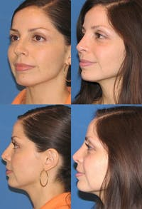 Rhinoplasty Gallery - Patient 2158480 - Image 1