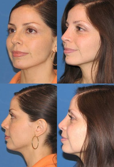 Revision Rhinoplasty Gallery - Patient 2388302 - Image 1