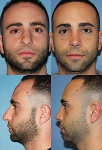 Rhinoplasty Gallery - Patient 2158482 - Image 1