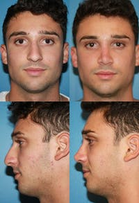 Rhinoplasty Gallery - Patient 2158484 - Image 1