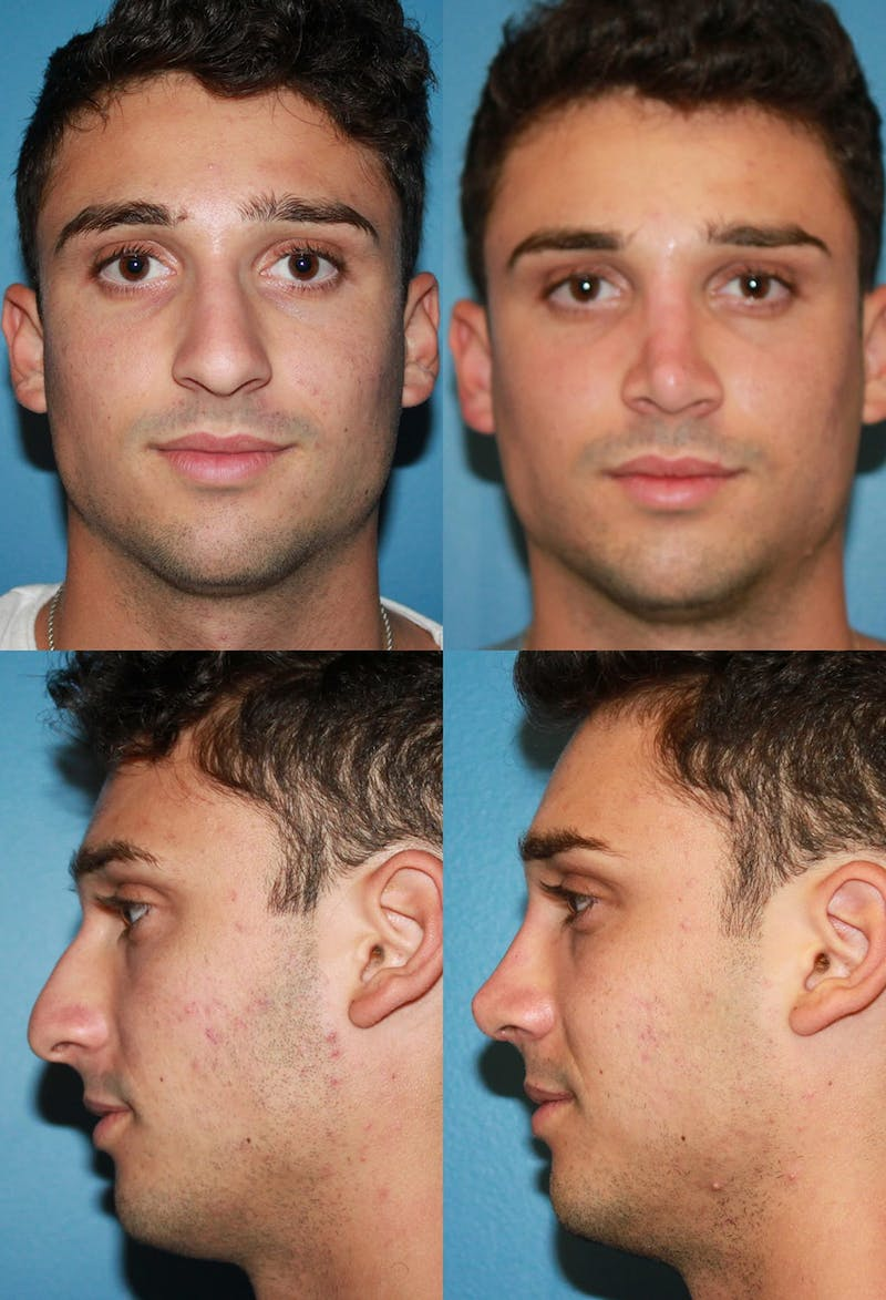Male Rhinoplasty Gallery - Patient 2388287 - Image 1