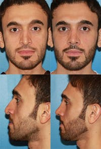 Rhinoplasty Gallery - Patient 2158485 - Image 1