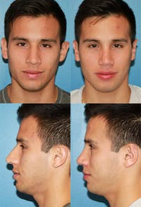 Rhinoplasty Gallery - Patient 2158489 - Image 1