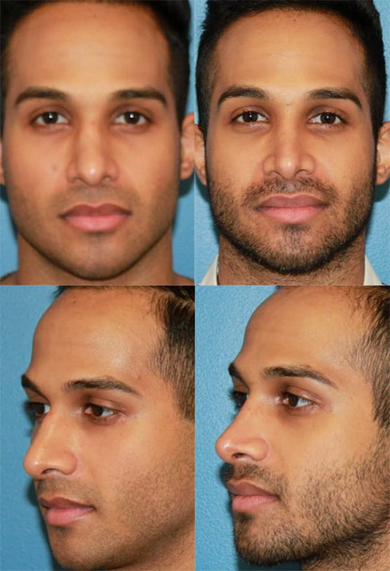 Male Rhinoplasty Gallery - Patient 2388290 - Image 1