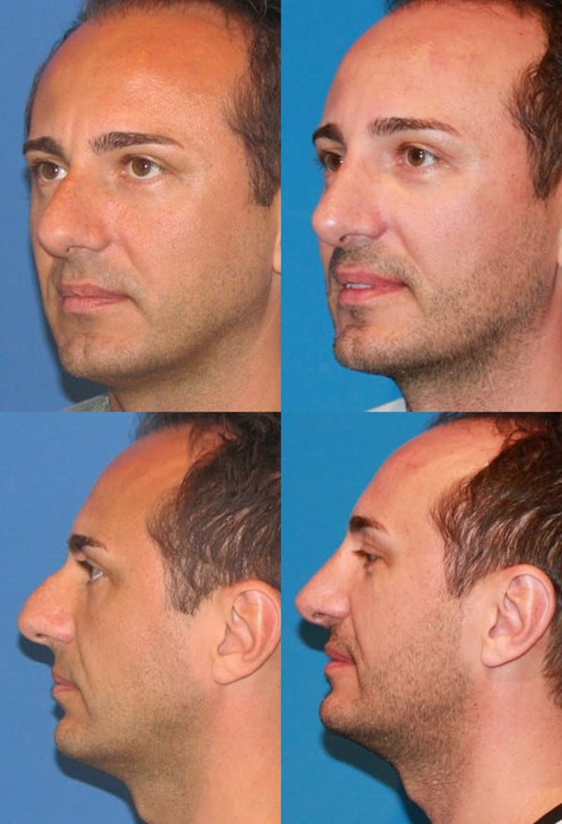 Rhinoplasty Gallery - Patient 2158492 - Image 1