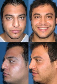 Rhinoplasty Gallery - Patient 2158493 - Image 1