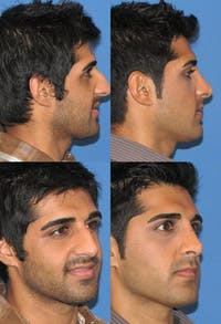 Rhinoplasty Gallery - Patient 2158494 - Image 1