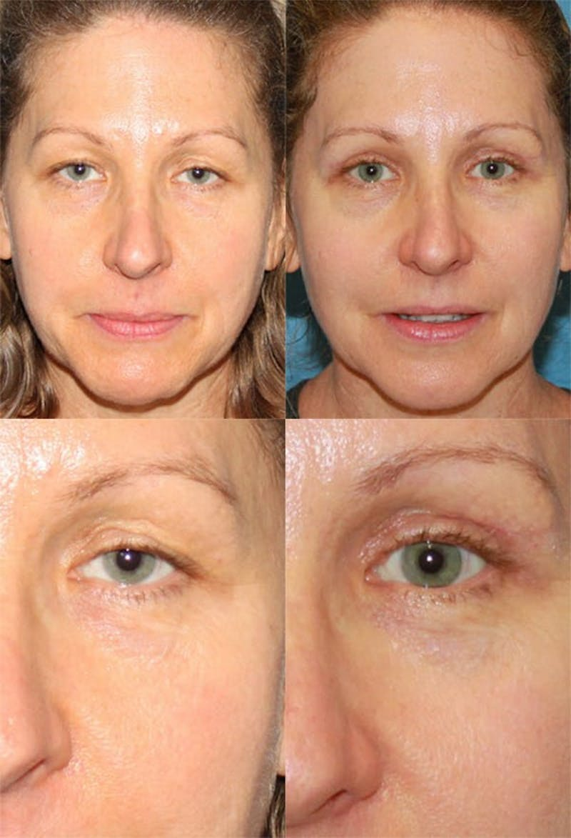 Upper Blepharoplasty Photo Gallery Gallery - Patient 2388319 - Image 1