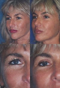 Upper Blepharoplasty Photo Gallery Gallery - Patient 2388320 - Image 1