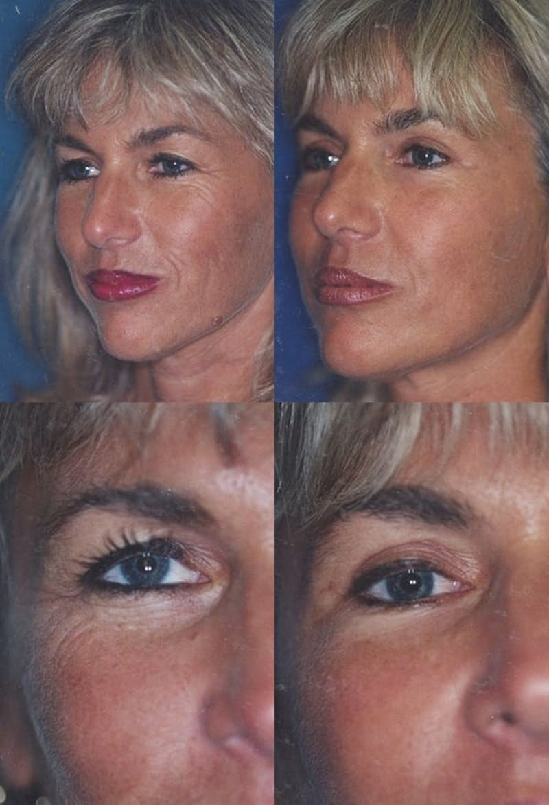 Eyelid Surgery (Blepharoplasty) Gallery - Patient 2158500 - Image 1
