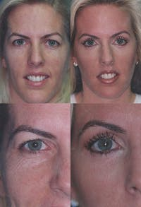 Eyelid Surgery (Blepharoplasty) Gallery - Patient 2158503 - Image 1