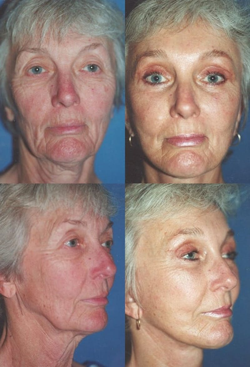 Upper Blepharoplasty Photo Gallery Gallery - Patient 2388324 - Image 1