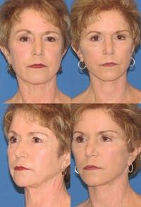 Eyelid Surgery (Blepharoplasty) Gallery - Patient 2158505 - Image 1