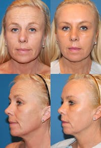 Upper Blepharoplasty Photo Gallery Gallery - Patient 2388326 - Image 1