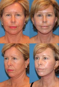 Eyelid Surgery (Blepharoplasty) Gallery - Patient 2158508 - Image 1