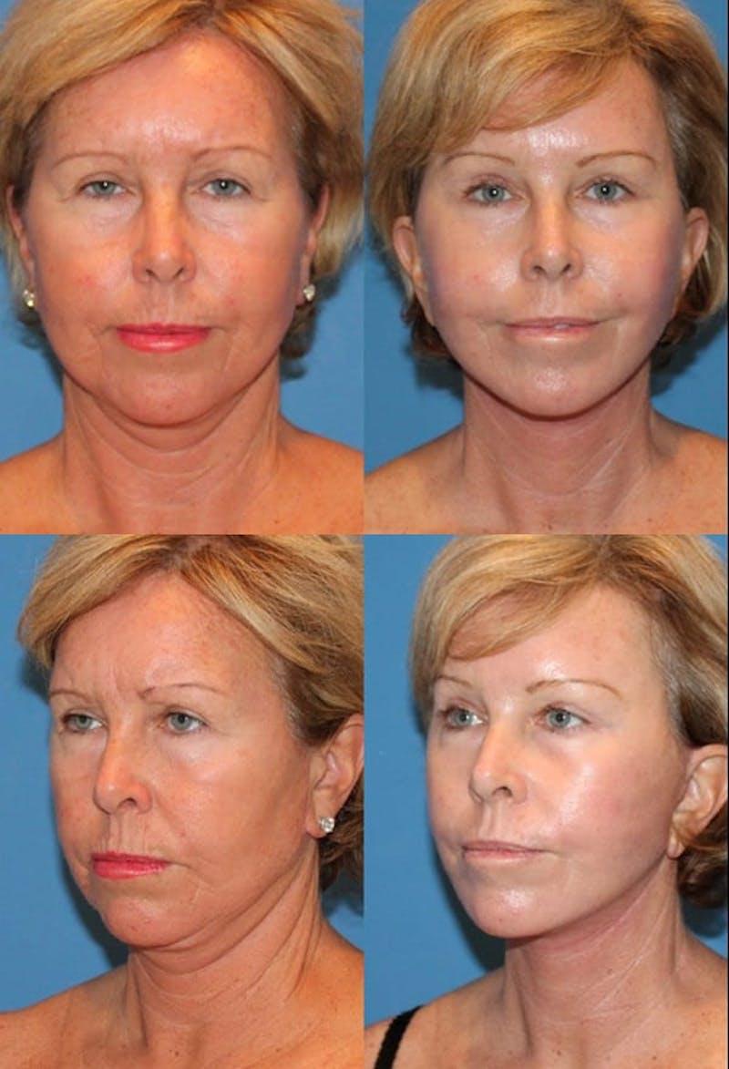 Eyelid Surgery (Blepharoplasty) Gallery - Patient 2158508 - Image 1
