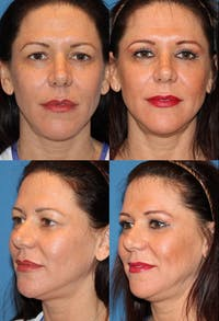 Upper Blepharoplasty Photo Gallery Gallery - Patient 2388328 - Image 1