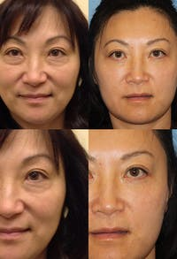 Eyelid Surgery (Blepharoplasty) Gallery - Patient 2158511 - Image 1
